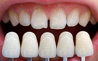 http://www.dentalsphere.in/wp-content/uploads/2015/11/Ceramic-Veneers-320x200.jpg