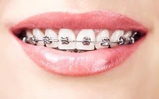 http://www.dentalsphere.in/wp-content/uploads/2015/12/shutterstock_124314160-320x200.jpg