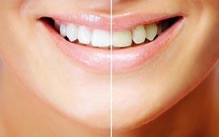 http://www.dentalsphere.in/wp-content/uploads/2015/12/shutterstock_77455267-320x200.jpg