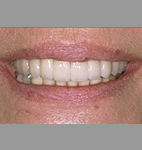 Dental Implants In Pune Tooth Implant Cost In Pune Mukundnagar