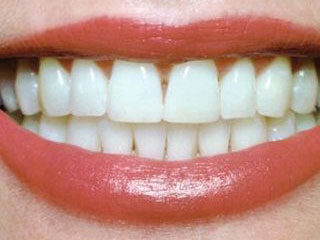 teeth-whitning-after-320x240