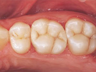 tooth-color-after