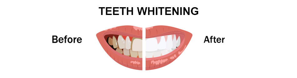 how-long-the-effects-of-teeth-whitening-last.jpg