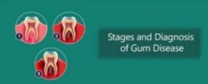 Stages-and-Diagnosis-of-Gum-Disease-e1494593468985.jpg