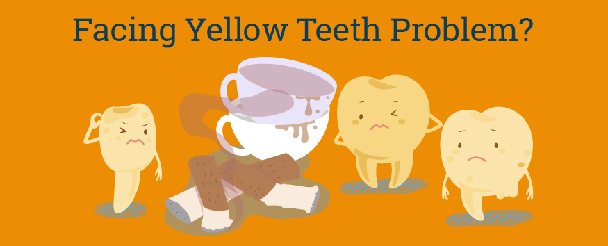 facing-yellow-teeth-problem.jpg
