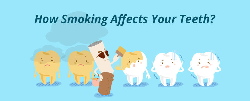 how-smoking-affects-your-teeth.jpg
