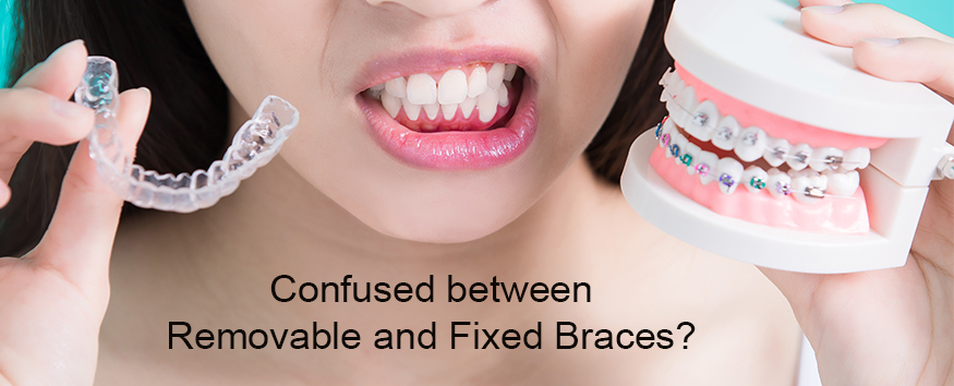 confused-between-removable-and-fixed-braces.jpg