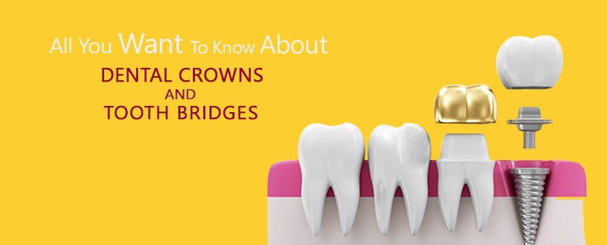 dental-crowns-and-tooth-bridges.jpg