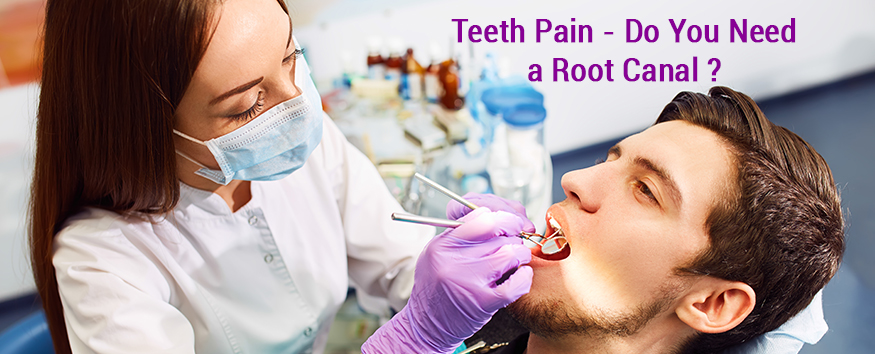 do-you-need-a-root-canal.jpg