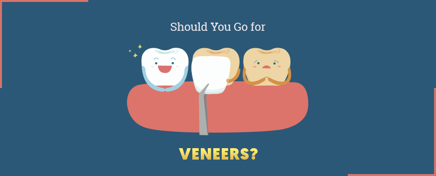 should-you-go-for-veneers-875x354.jpg