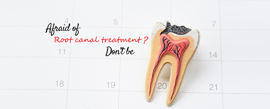afraid-of-root-canal-treatment.jpg