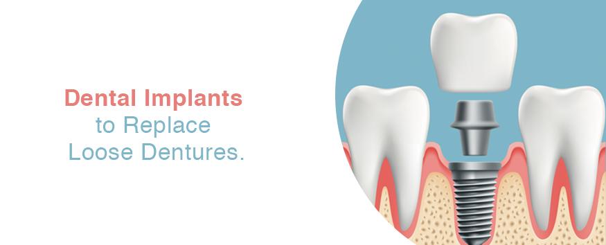 loose-denture-implant.jpg