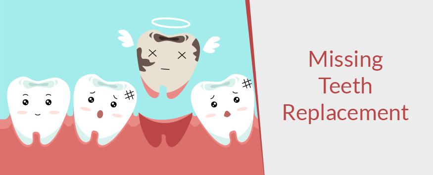 Missing-Teeth-Replacement-1.jpg