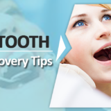 Wisdom Tooth Recovery Tips