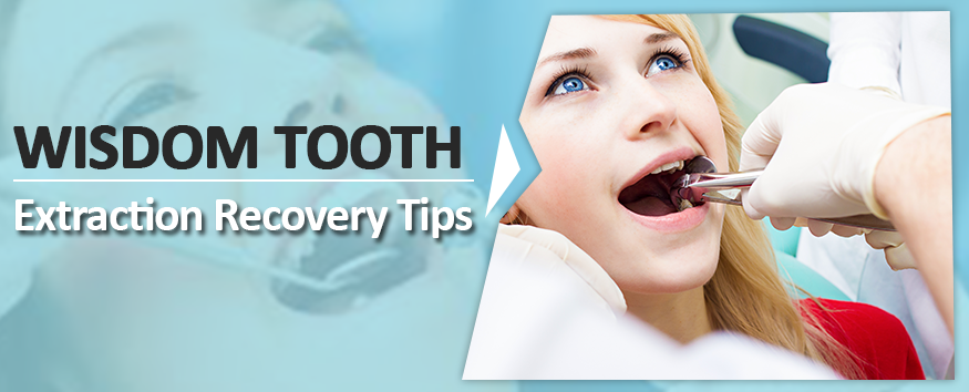 Wisdom-Tooth-Recovery-Tips.png