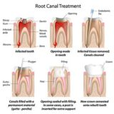 root canal treatment cost Pune