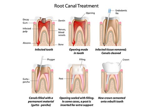 root-canal-treatment-cost.jpg