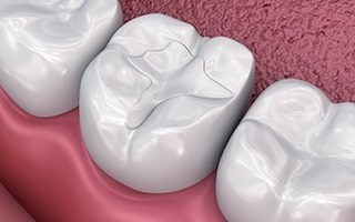 https://www.dentalsphere.in/wp-content/uploads/2019/03/tooth-coloured-fillings-dental-sphere-320x200.jpg