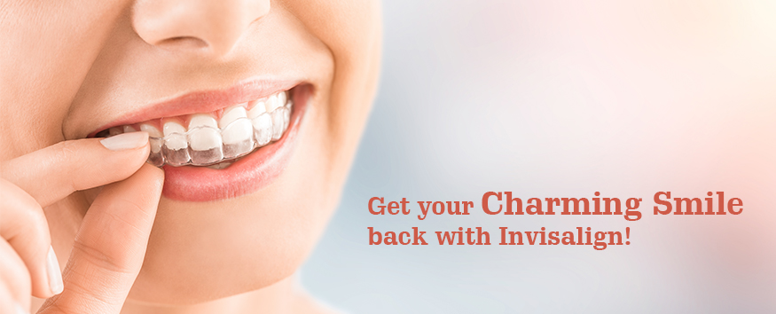 Get-your-charming-smile-back-with-Invisalign-Dental-Sphere-Pune.jpg