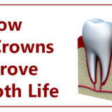 Know How Dental Crowns Can Improve Your Tooth Life - Best Dentist in Pune