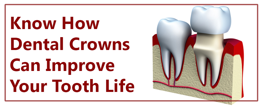 Know How Dental Crowns Can Improve Your Tooth Life | Dental Cap