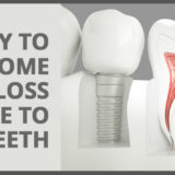 Dental Implant - A Way To Overcome Bone Loss Due To Missing Teeth