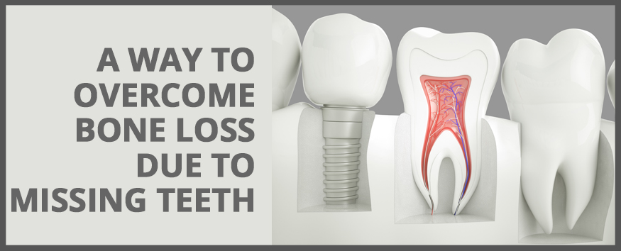 Dental-Implant-A-Way-To-Overcome-Bone-Loss-Due-To-Missing-Teeth.jpg