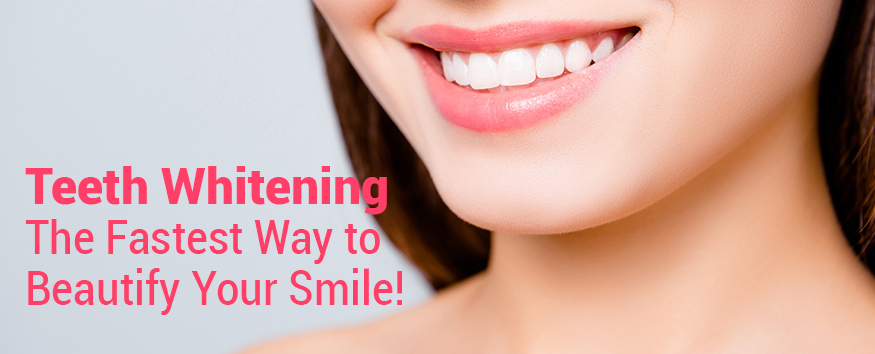Teeth-Whitening-The-Fastest-Way-to-Beautify-Your-Smile.jpg