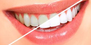 Teeth whitening in Pune - Dental Sphere