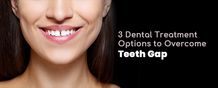 3-Dental-Treatment-Options-to-Overcome-Teeth-Gap-by-cosmetic-dentist-in-Pune.jpg