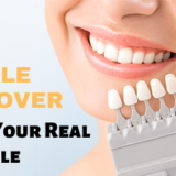 Smile Makeover - Discover your Real Smile