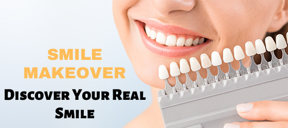 Smile-Makeover-Discover-your-Real-Smile.png